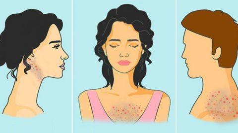 Co způsobuje akné na různých částech těla – ajak tomu předcházet!