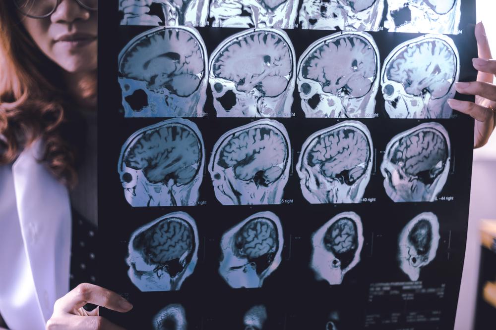 Cukrovka třetího typu, Atrofie čelního laloku