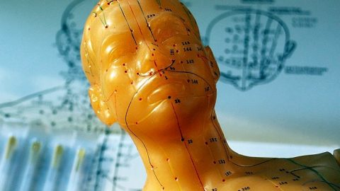 Jak najít dobrého akupunkturistu